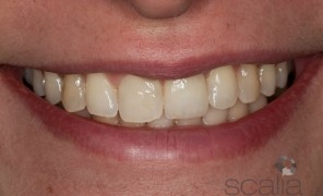 implantologia dentale studio dentistico scalia - catania
